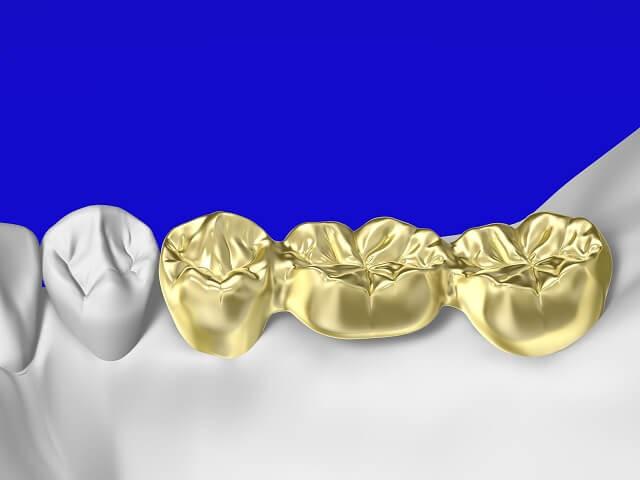 実は隠れた資産。金歯の買取があることを知っていますか?